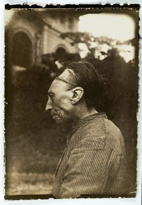 "Homo sapiens sapiens - Deliberate deformity of the skull, ""Toulouse deformity"""